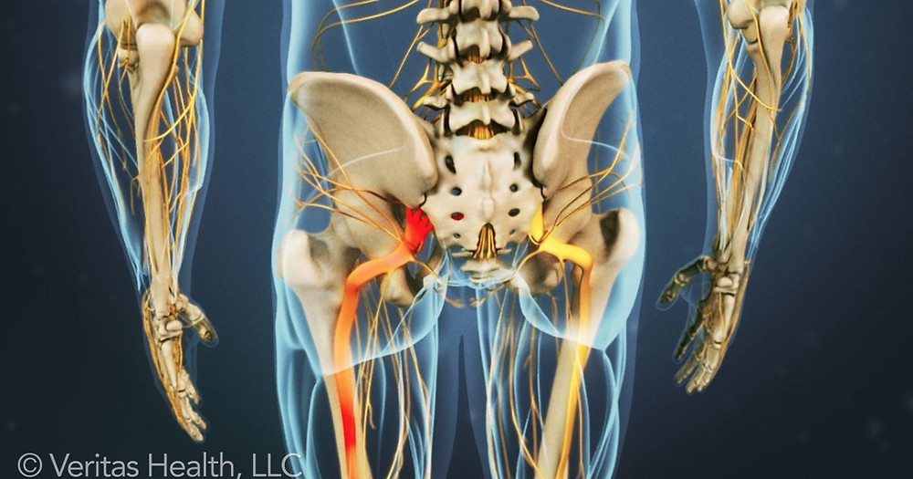 Sciatic Nerve Treatment at Cary Chiropractor