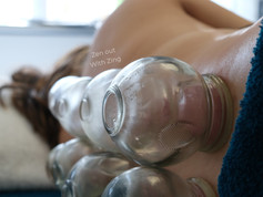 Cupping therapy for pregnant women