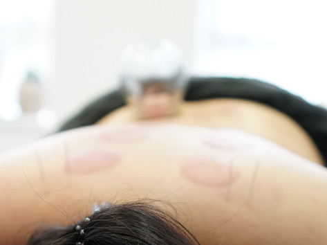 Zen out with Cupping Therapy and Acupuncture