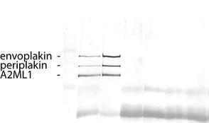Figure 11: Immunprecipitation PNP