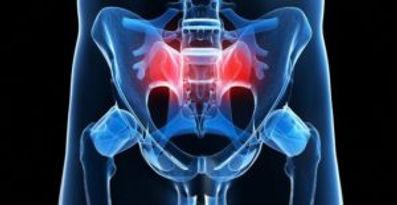sacroiliac-joint-dysfunction-300x155.jpg