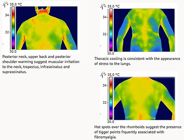 Thoracic Images.png