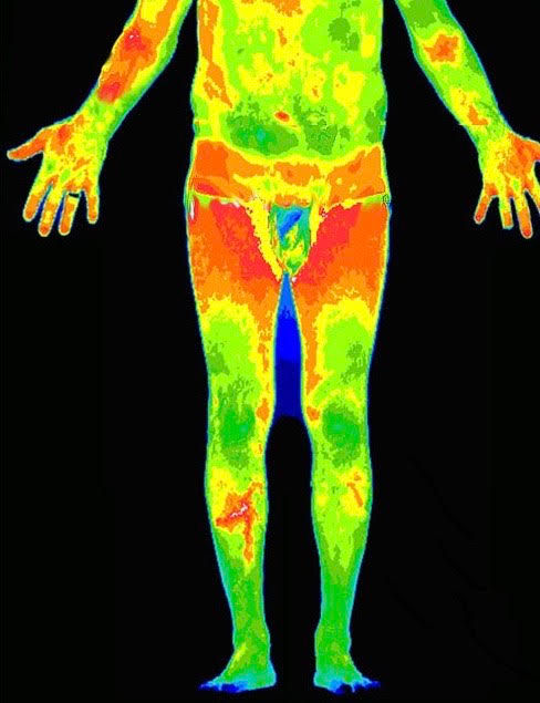 Lower Body Thermography Scan