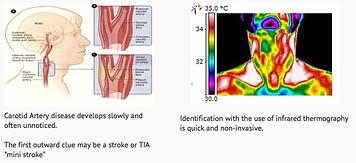 Carotid Occlusal Disease image.png