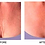 Thumbnail: Ageless Beauty Chest Treatment Pad