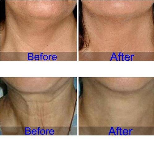 Ageless Beauty Neck Treatment Pad - Reusable!