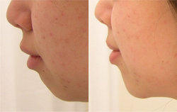 Nose/Chin Shaping
