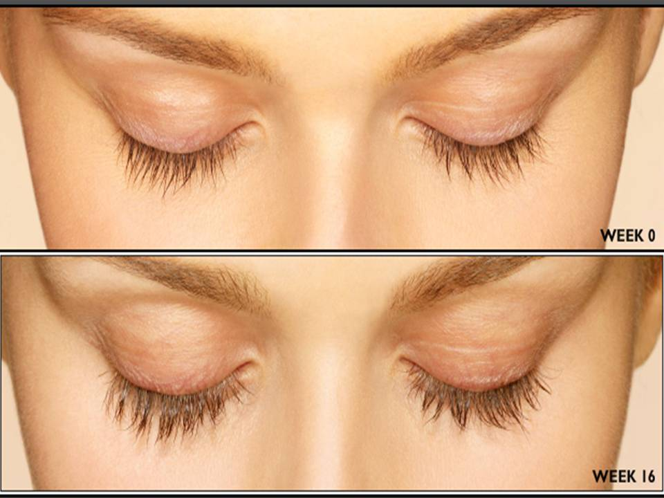 Latisse Eyelash