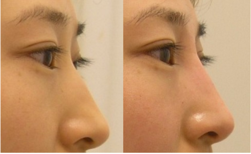 Non surgical nose enhancement or nos