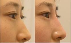 Non surgical nose enhancement or nos