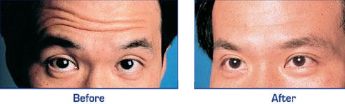 Forehead horizontal lines treatment