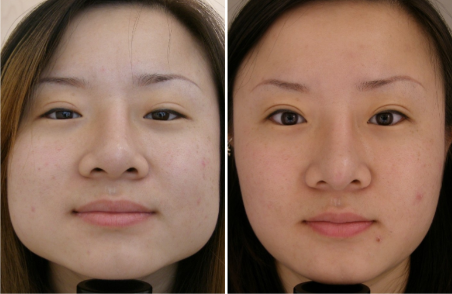 Facial Shaping