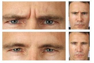 Botox Auckland