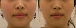 Facial Shaping