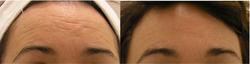 Forehead horizontal line and fine li