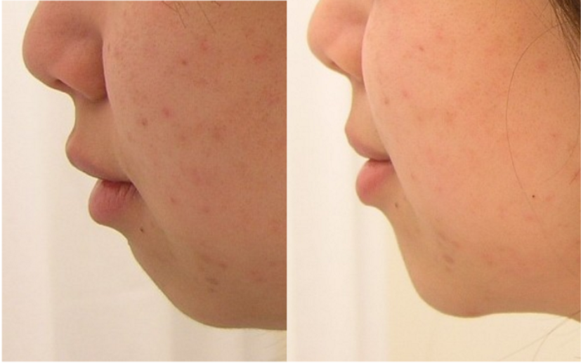 Non surgical Chin enhancement by usi