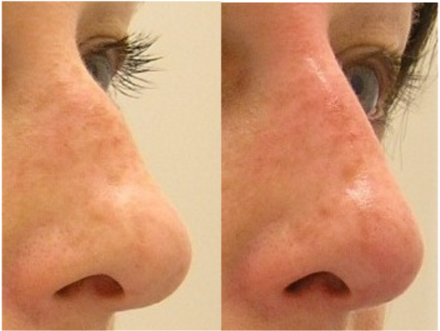 Non surgical nose enhancement