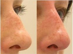 Non surgical nose enhancement