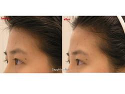 Forehead Enhance