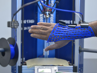 Wrist Sling - Customized just for you with the rise of J Group Robotics 3D Printers