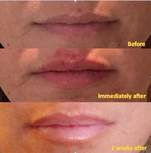 Lips timeline