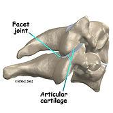 joint dysfunction, facet joint pain, sacroiliac joint pain