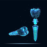 Implantat Foto 01.jpg