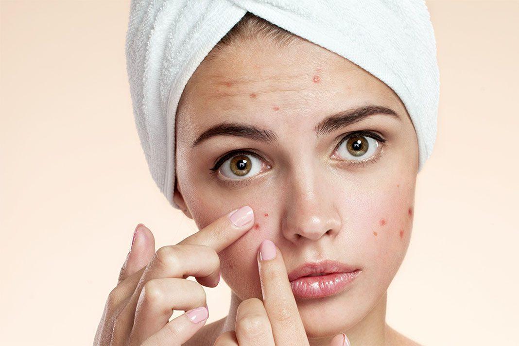 acne_bouton