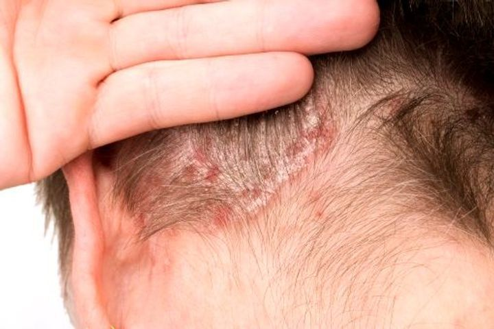 psoriasis croutte