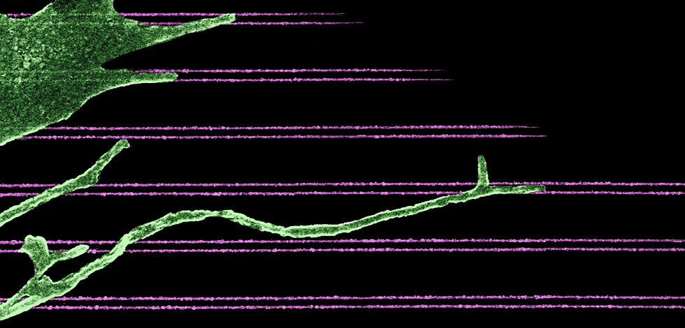 Fibroblast spreading on fiber mimic surf