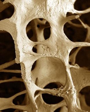 osteopenia-osteoporosis.jpg