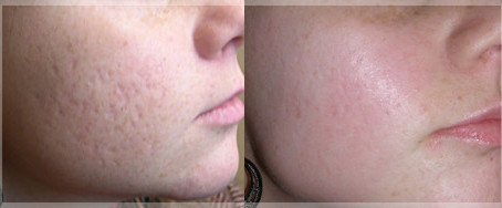 How to get rid of ACNE?
