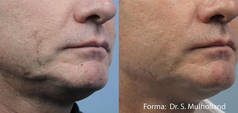 skin tightening toronto forma facial