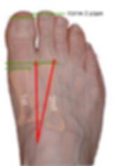 כף רגל של מורטון Morton's foot
