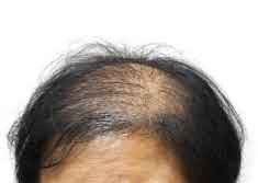 Alopecia Related Hair Loss for Women: Causes and Remedies