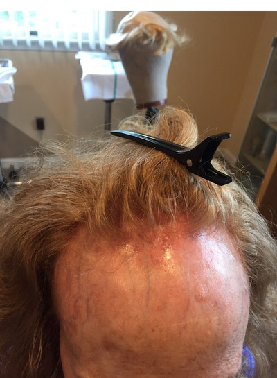 WOMEN'S FRONTAL LOBE ALOPECIA. a new non surgical hair restoration challenge.