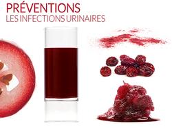 préventions des infections urinaires