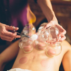 cupping-therapy-flourish