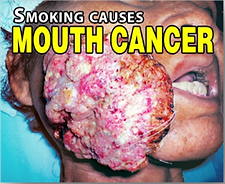 Mouth-Cancer-PH.png