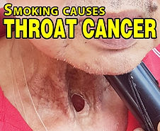 Throat Cancer.jpg