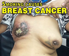 Breast Cancer.jpg