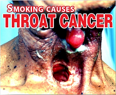 Throat-cancer-PH.png