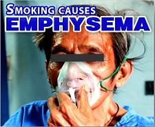 Emphysema-PH.png