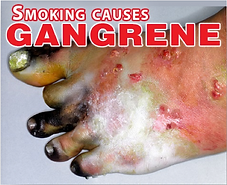 Gangrene-2-PH.png