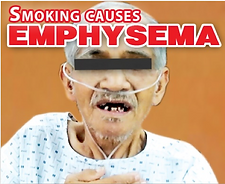 Emphysema-2-PH.png