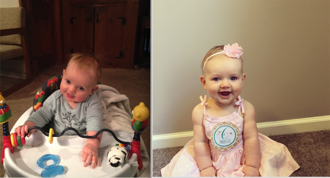 Before & After Torticollis Treatment
