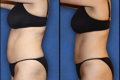 Ultrasound Cavitation treatment before and after pictures of the abdomen