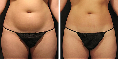 Ultrasound cavitation treatment before and after pictures of the stomach