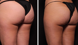 Butt Lift Before and After Picture