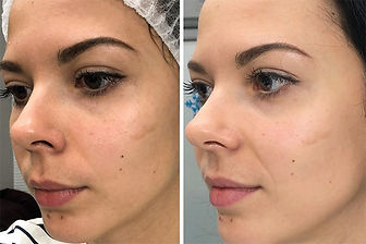 HydroLuxx Facial, Facials, Body Contouring, Body Sculpting, Red Light Therapy, PEMF